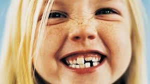 Kako skrbimo za zdravje otroških zob?
