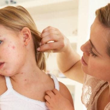 Alergije pri otrocih in kako ukrepamo?